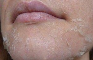Алергія на обличчі: причини, симптоми і методи лікування