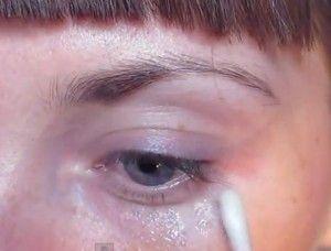 Алергія на століттях очей: основні симптоми, діагностика, лікування