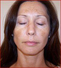 Білі плями на обличчі: причини - хвороби, що викликають дефект - способи лікування