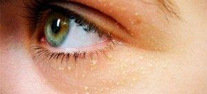 Білі точки на обличчі: причини появи, лікування, профілактика