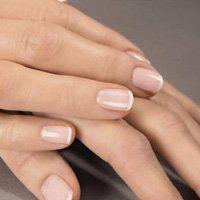 Білі точки на нігтях
