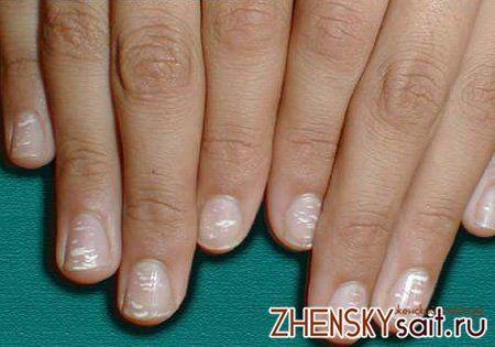 білі точки і смуги на нігтях