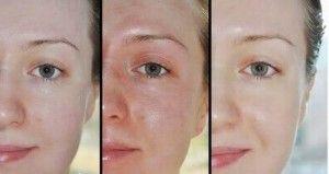 Бліде обличчя: причини - лікувальні процедури - поради
