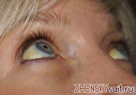 симптоми синдрому Жильбера
