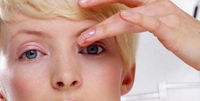 Що робити якщо схопився ячмінь на оці. Краплі і мазі для лікування