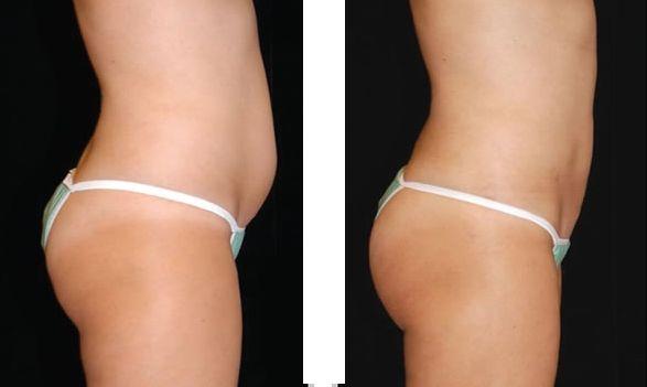 Що таке кавітація в косметології, основні показання і побічні ефекти