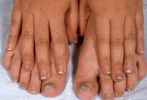 Чудодійний ефект лаку від грибка нігтів