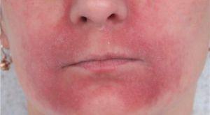 Дерматит на обличчі - види захворювання, основні симптоми і лікування