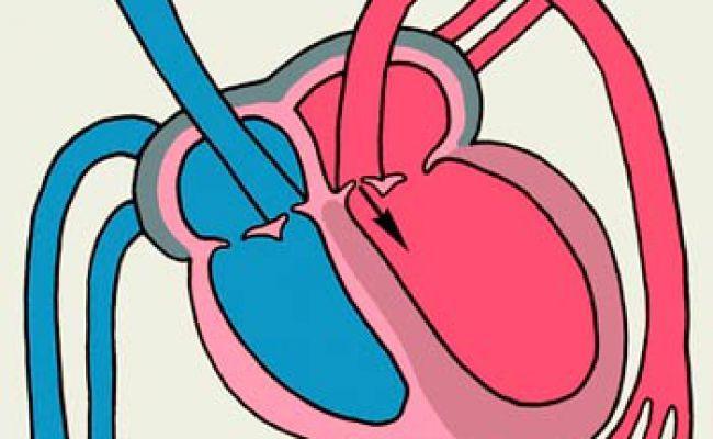 Дилатація бічних шлуночків. Причини