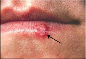 Герпес на губах - причини і способи лікування в домашніх умовах