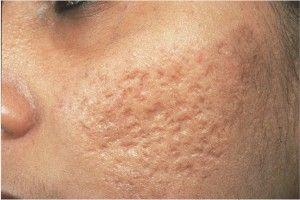 Герпес під носом - симптоми, причини, особливості лікування