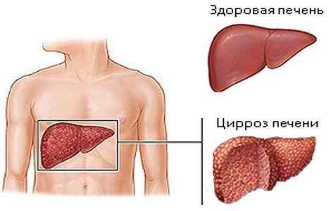 Як лікувати цироз печінки, причини та ознаки