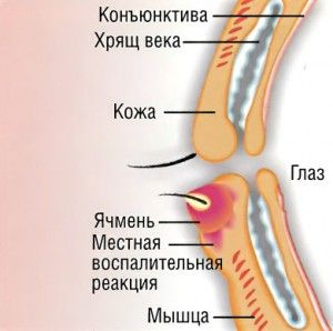 Як лікувати ячмінь на оці: причини, симптоми, методи лікування