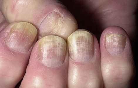 Як лікувати нігтьової грибок, лікування народними засобами