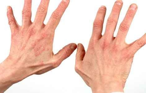 Як вилікувати дерматит, симптоми і причини
