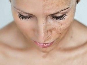 Як вирівняти колір обличчя: поради, процедури, рекомендації