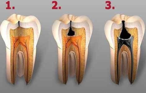 Карієс зубів причини і симптоми, як виглядає карієс
