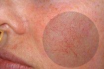 Купероз на обличчі: причини, симптоми, народні способи лікування