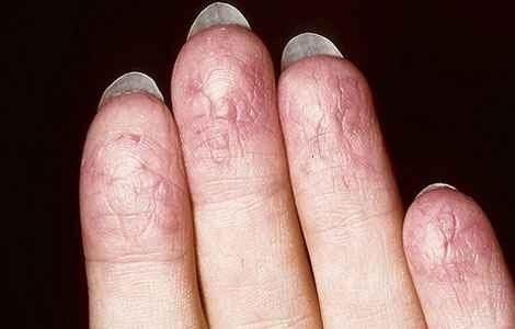 Лікування екземи на пальцях рук