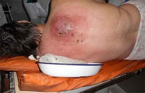 Лікування карбункула в домашніх умовах