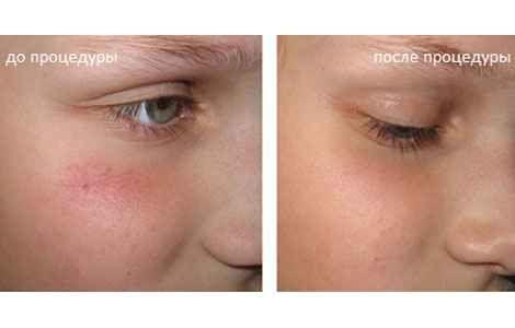 Лікування купероза на обличчі в домашніх умовах