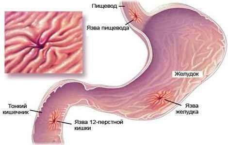 Народні методи лікування від виразки шлунка