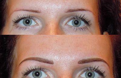 Особливості видалення татуажу брів лазером: фото до і після процедури