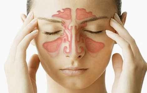 Гострий синусит лікування