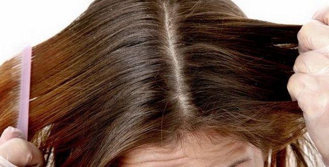 Чому з`являється жирна себорея шкіри голови і як лікувати