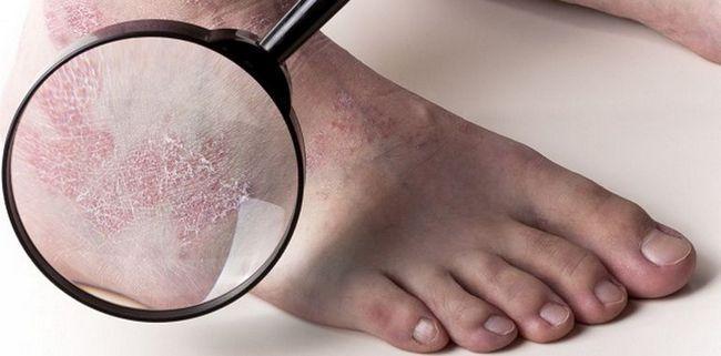 Чому лущиться шкіра на ступнях ніг і пальцях. Способи лікування