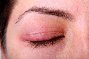Почервоніння під очима: причини появи, способи лікування, відео-інструкції