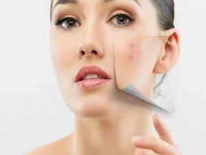 Проблемна шкіра обличчя: причини і методи лікування