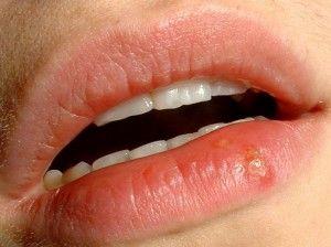 Прищ на губі - запалення біля порожнини рота. Причини утворення, методи лікування, відео