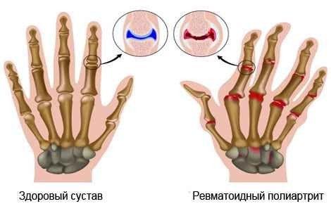 Ревматоїдний поліартрит лікування народними засобами