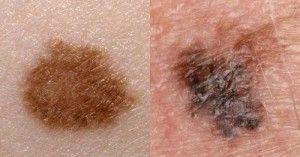 Родимки на обличчі: причини появи, небезпека, види