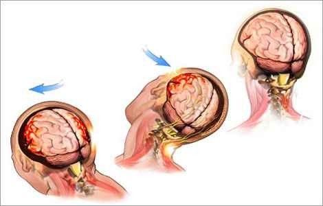 Струс головного мозку лікування в домашніх умовах