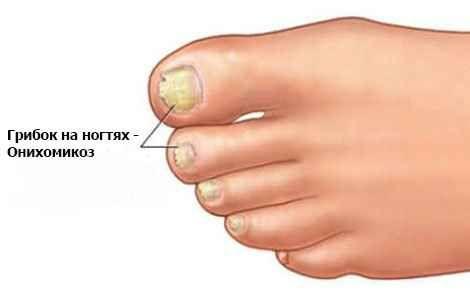 Потовщеннянігтів на ногах причини і лікування