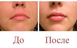 Збільшити губи гіалуроновою кислотою - вся правда про процедуру