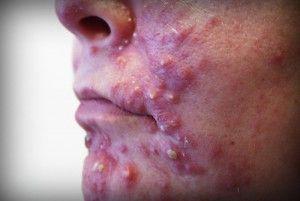 Запалення на обличчі: види і причини появи, ефективні методи лікування