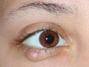 Запалення під оком: типи, причини, лікування в домашніх умовах