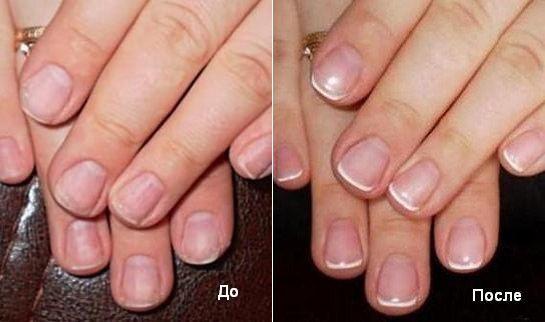 до і після фото