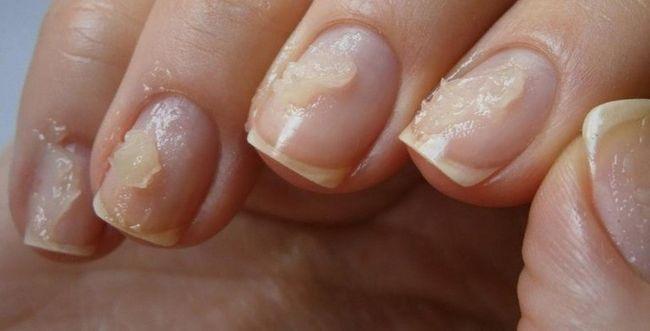 Відновлюємо нігті після нарощування будинку