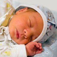 Желтушка у новонароджених, лікування і симптоми захворювання