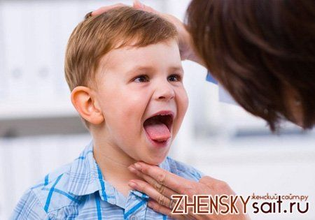 жовтий мову у дитини